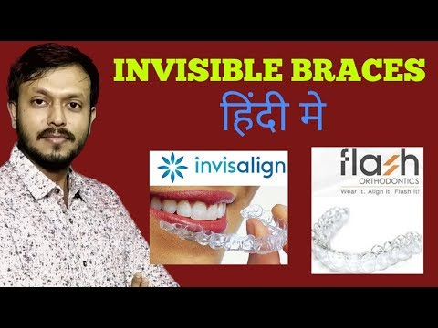 INVISIBLE DENTAL BRACES IN HINDI   डेंटल ब्रेसेस   Invisalign Braces  Ka Kharcha  