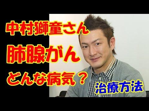 中村獅童さん歌舞伎が公表した初期の肺腺がんとは症状と治療法は