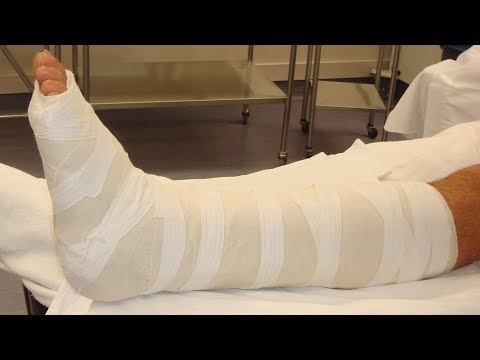 How Are Non Union & Malunion Of Fractures Managed? - Dr. Veera Reddy Jayar