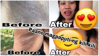 The best Remedy sa Maitim na Kili kili proven and tested|Maitim na Kili kili|Paano magpaputi ng kili