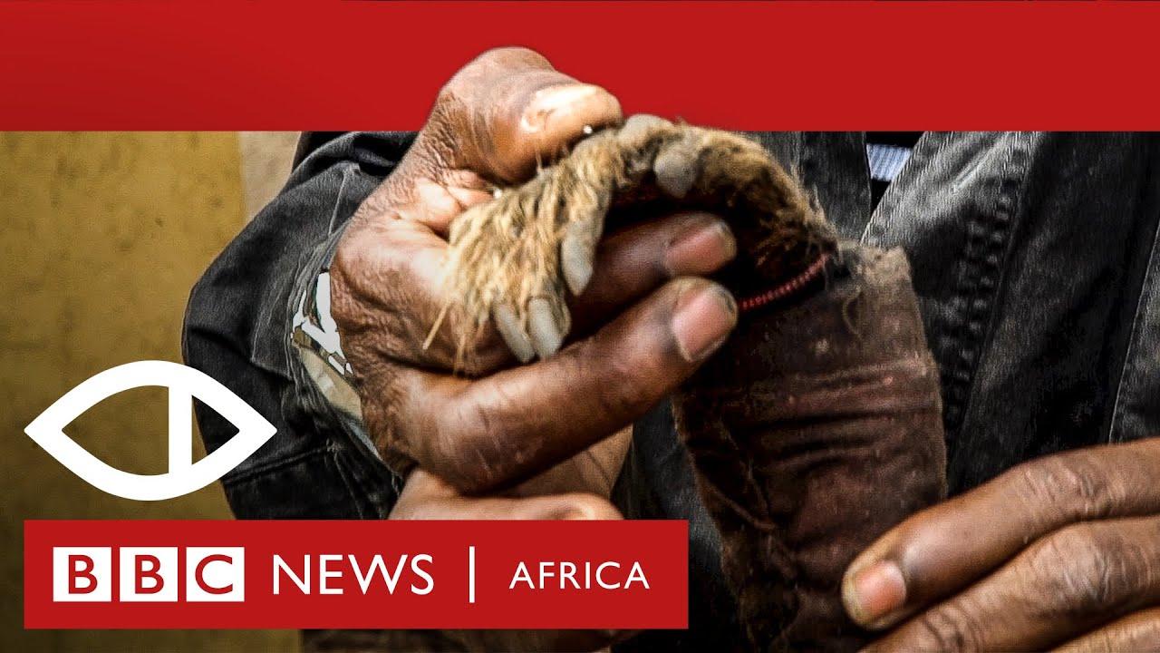 Download Malawi's Human Harvest - BBC Africa Eye documentary
