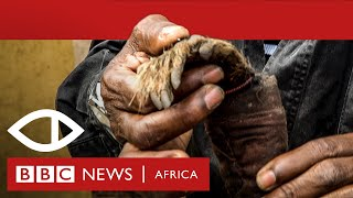 Download Malawi's Human Harvest - Full documentary - BBC Africa Eye Mp3 and Videos