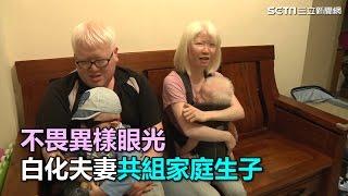 不畏異樣眼光 白化夫妻共組家庭生子|三立新聞網SETN.com