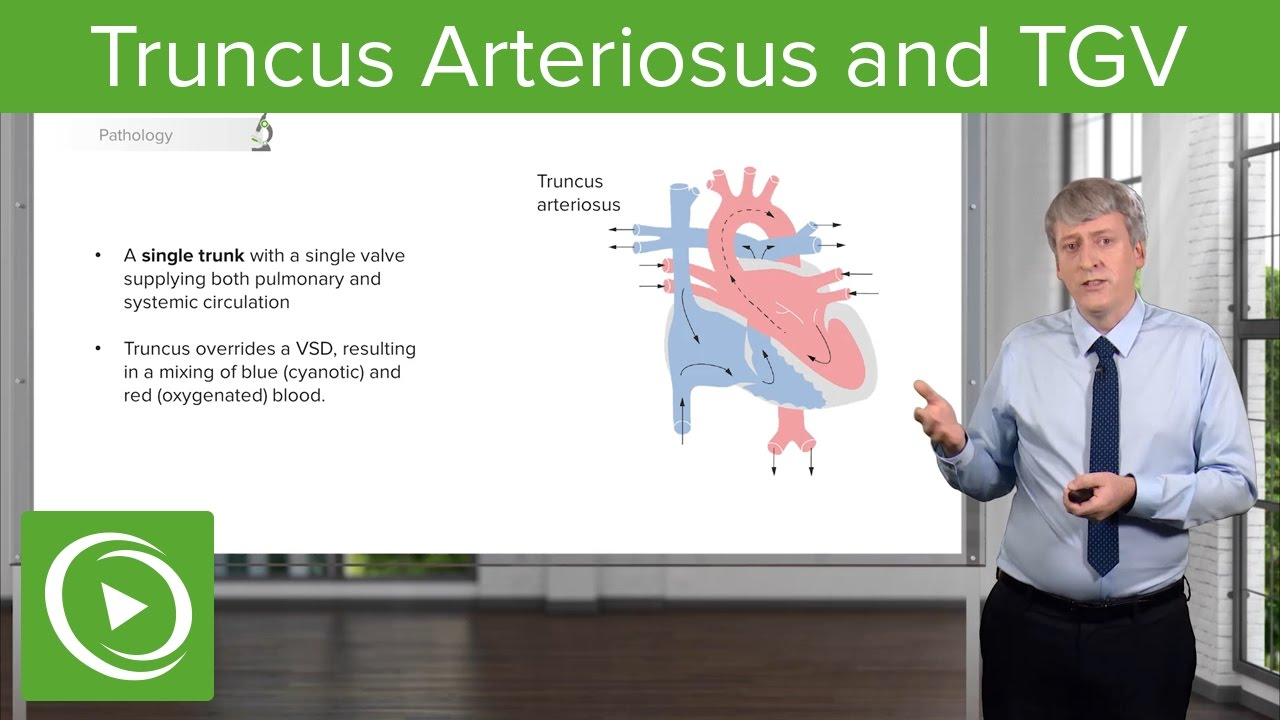 Truncus Arteriosus and TGV: Pathology – Pediatric Cardiology | Lecturio