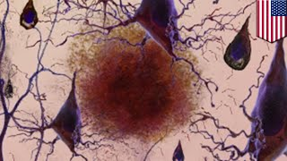 Alzheimer's treatment: MIT researchers reverse memory loss in mice with Alzheimer's - TomoNews