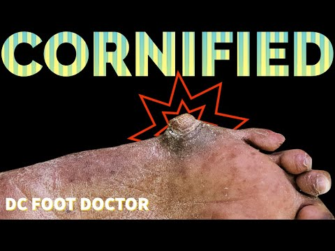 Cornified: Extremely Thick and Hard Callus Removal