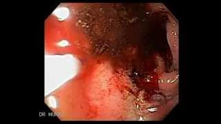 Duodenal Ulcer Bleeding Endoscopic Treatment