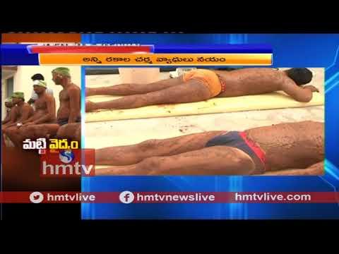 Traditional Mud  Treatment , Nadipathy ,Telugu News ¦ hmtv