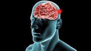 Beyin Kanaması Durumunda Ne Yapmak Gerekir?