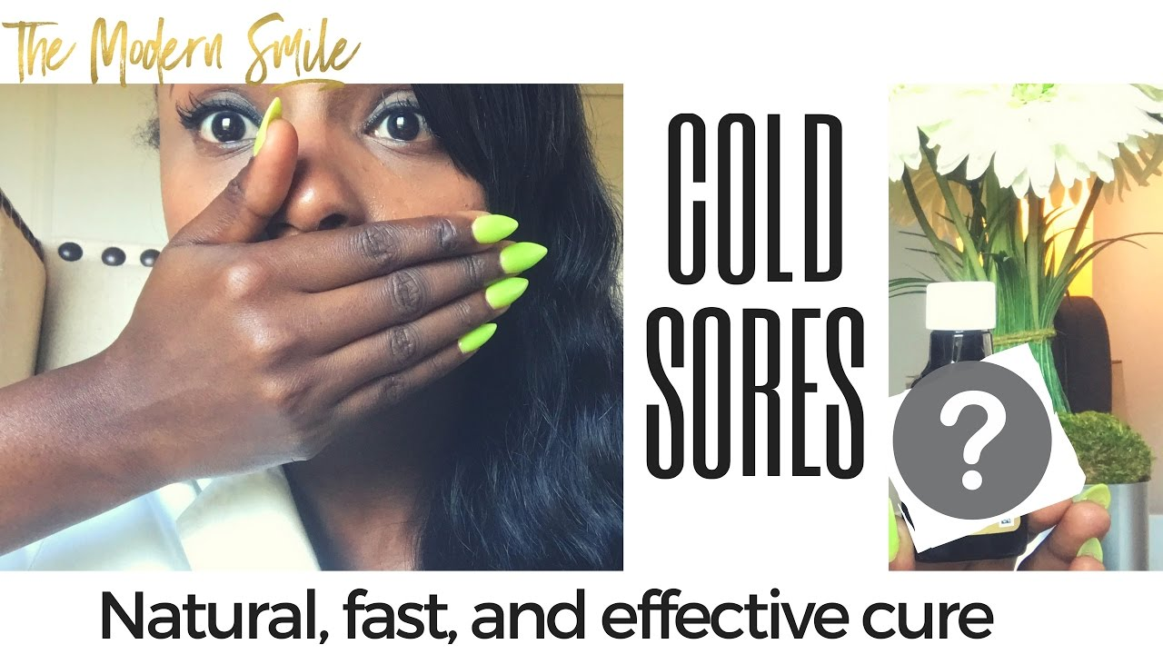 How to Heal and Cure a Cold Sore OvernightFast Natural and It Works