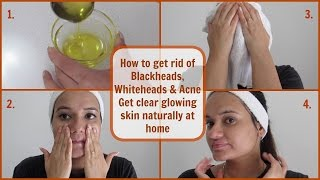 Get rid of Blackheads, Whiteheads & Acne | Oil Cleansing Method