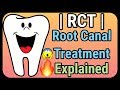 RCT Explained   What is Root Canal Treatment?