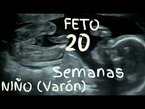 Es niño!! FETO 20 SEMANAS EMBARAZO Desarrollo video ecografía en 3d💖 5º mes