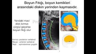 Boyun Fıtığı - Bölüm 1 -  Prof. Dr. Bülent DÜZ