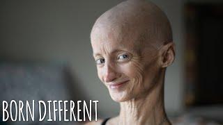 Pengertian Penyakit Kelainan Genetik (Progeria Progresif) Membuat Anak-anak Tua Sebelum Waktunya..