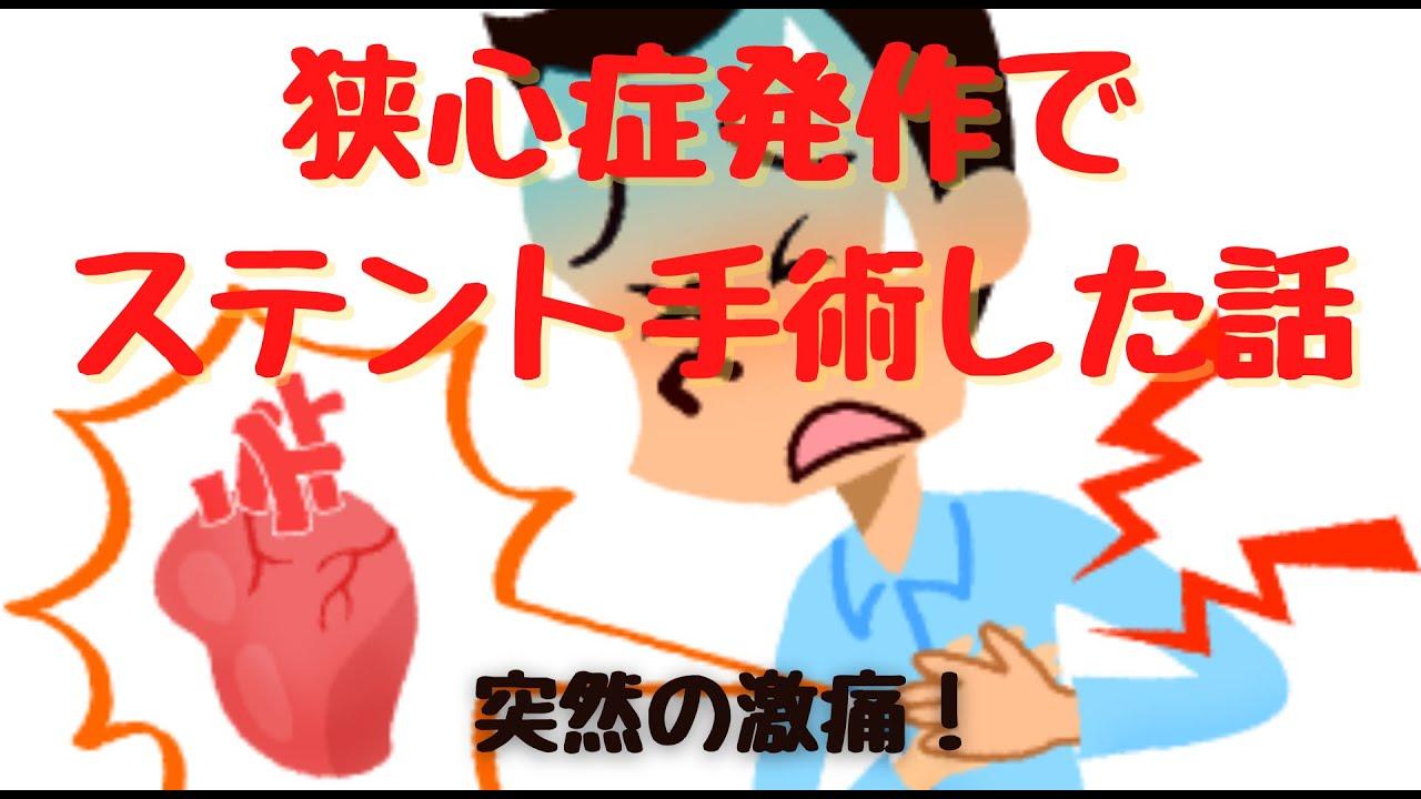 ステント 手術 心臓