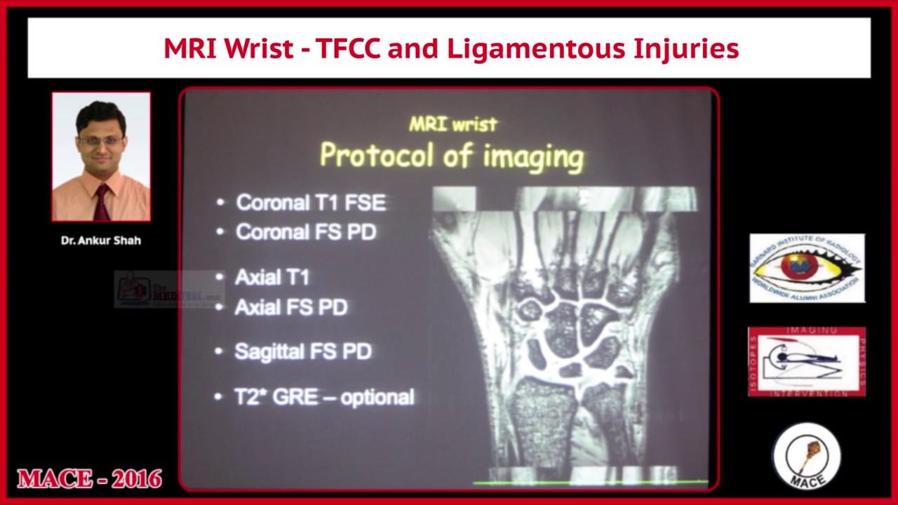 Tralier MRI Wrist TFCC and Ligamentous Injuries - YouTube