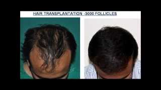Kerala- Hair transplantation results Thumbnail