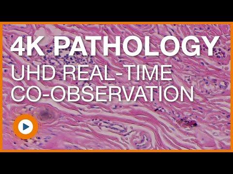 4K UHD Clinical Pathology Video
