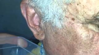 Серная пробка  промывание уха