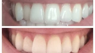 "Fixing a crooked tooth inexpensively - ""Dental Composite Overlay"""
