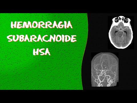Videoaula E Dicas Em RADIOLOGIA - Tomografia De Crânio - Hemorragia Subaracnóide (HSA) E Aneurisma