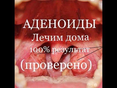 Как выглядят воспаленные аденоиды