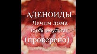 видео Лечение аденоидов