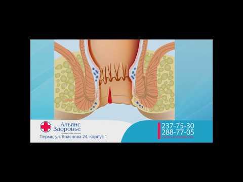 Геморрой – фото, причины, симптомы, признаки, стадии