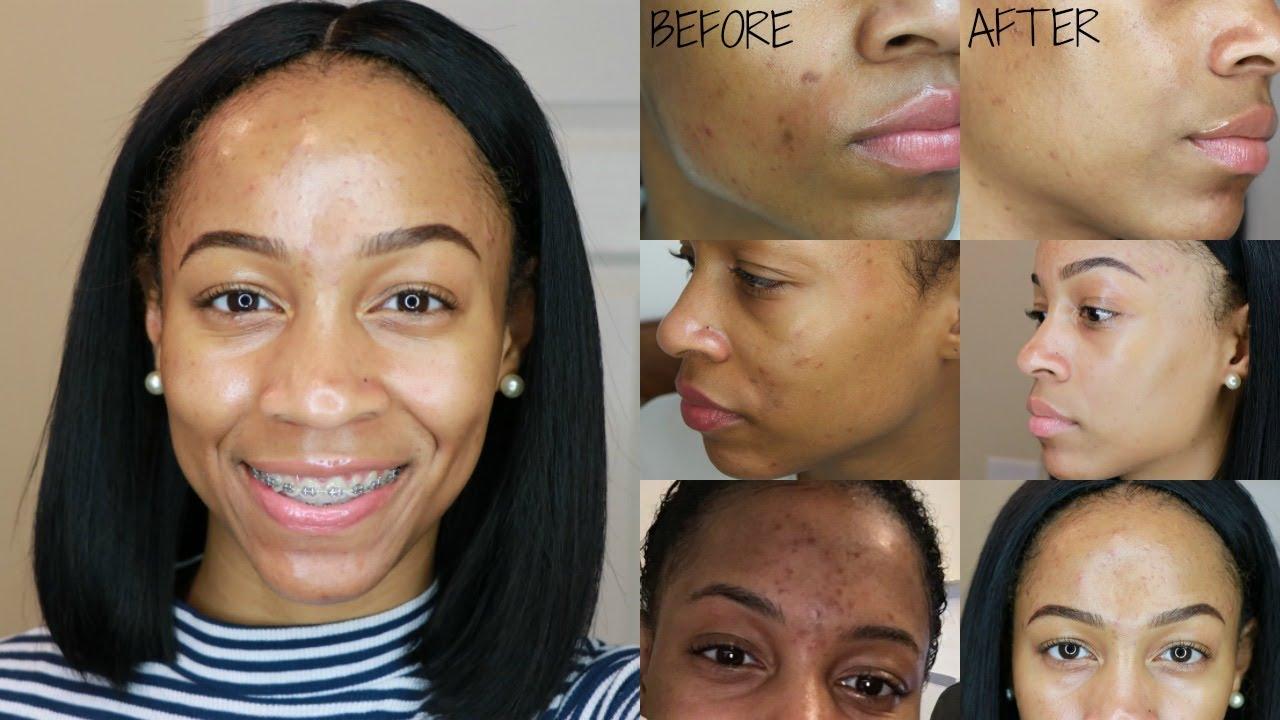 How I Remove Dark Spots Acne Scars Nighttime Skincare Routine
