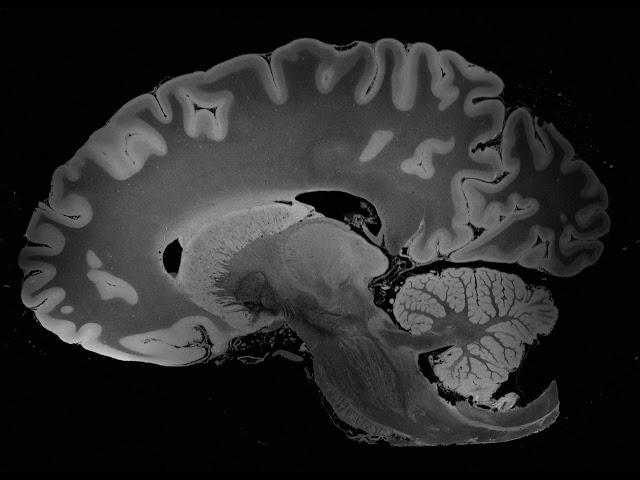 como se lee una resonancia magnetica de cerebro