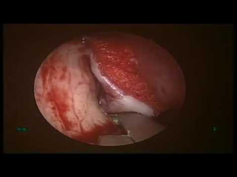 Endoscopic DCR ( Case 1 ) - Dr. Satish Jain - www.skullbase360.in