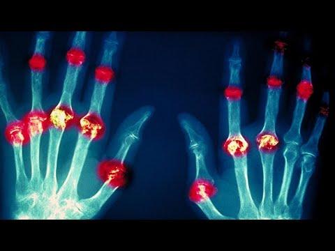 Всемирный день борьбы с артритами