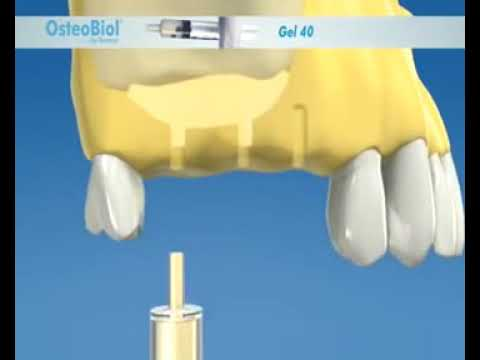 Osteobiol Gel 40