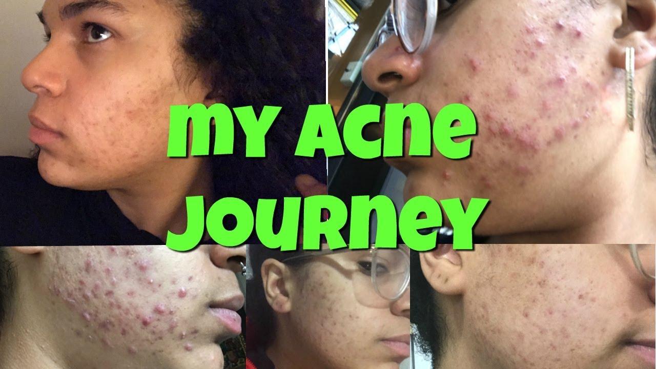 wet-acne-adult-forum-girls