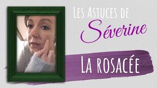 La rosacée ou couperose :  symptômes et conseils
