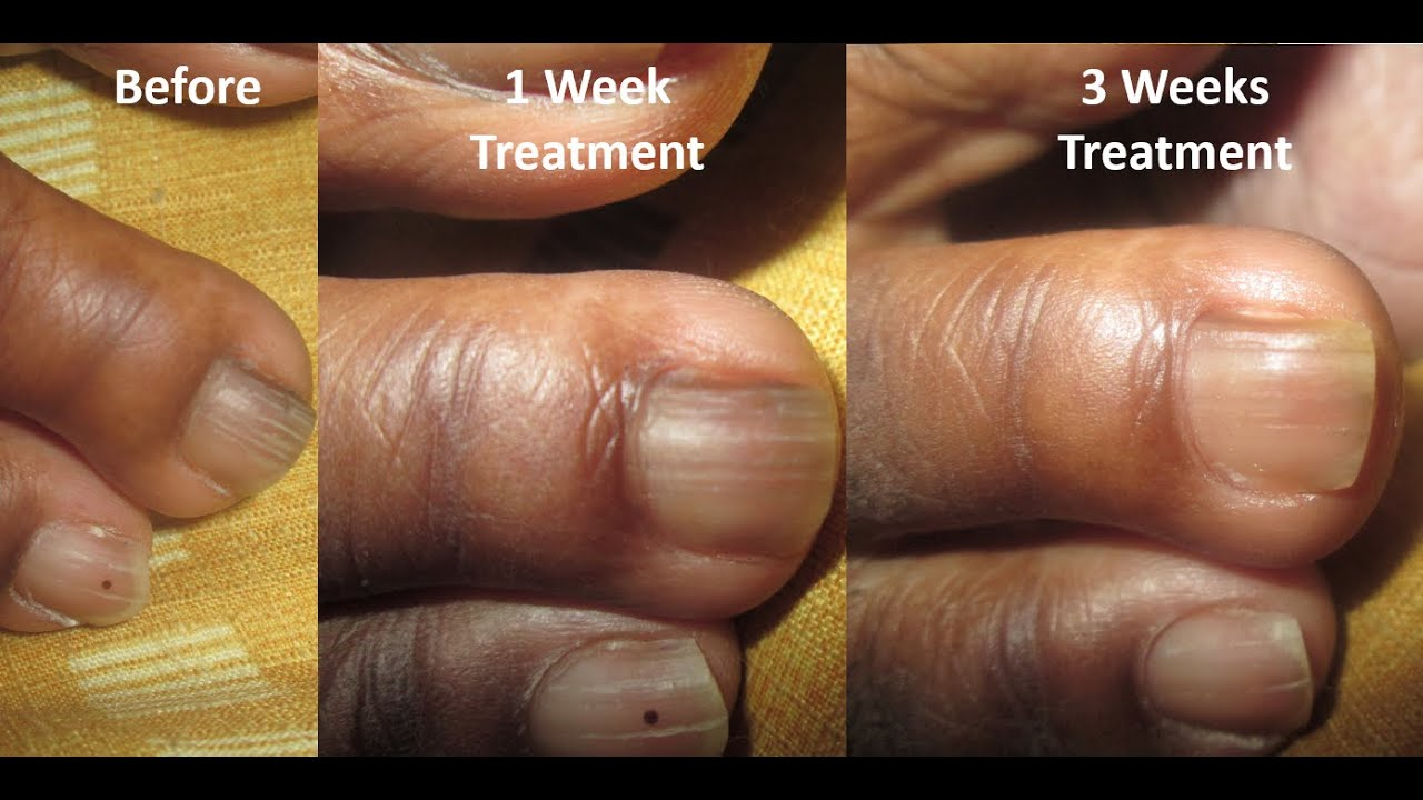 Nail Fungus Treatment Before and After: Week 2 to 3 - YouTube