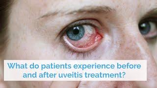 Sebagai konsultan ahli bedah mata dengan subspesialis di bidang katarak, penyakit medis-retina dan r.