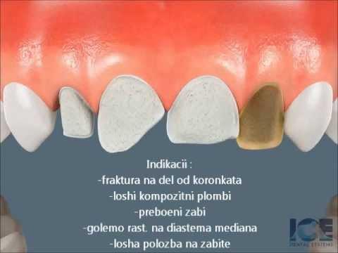 Dentalni Faseti
