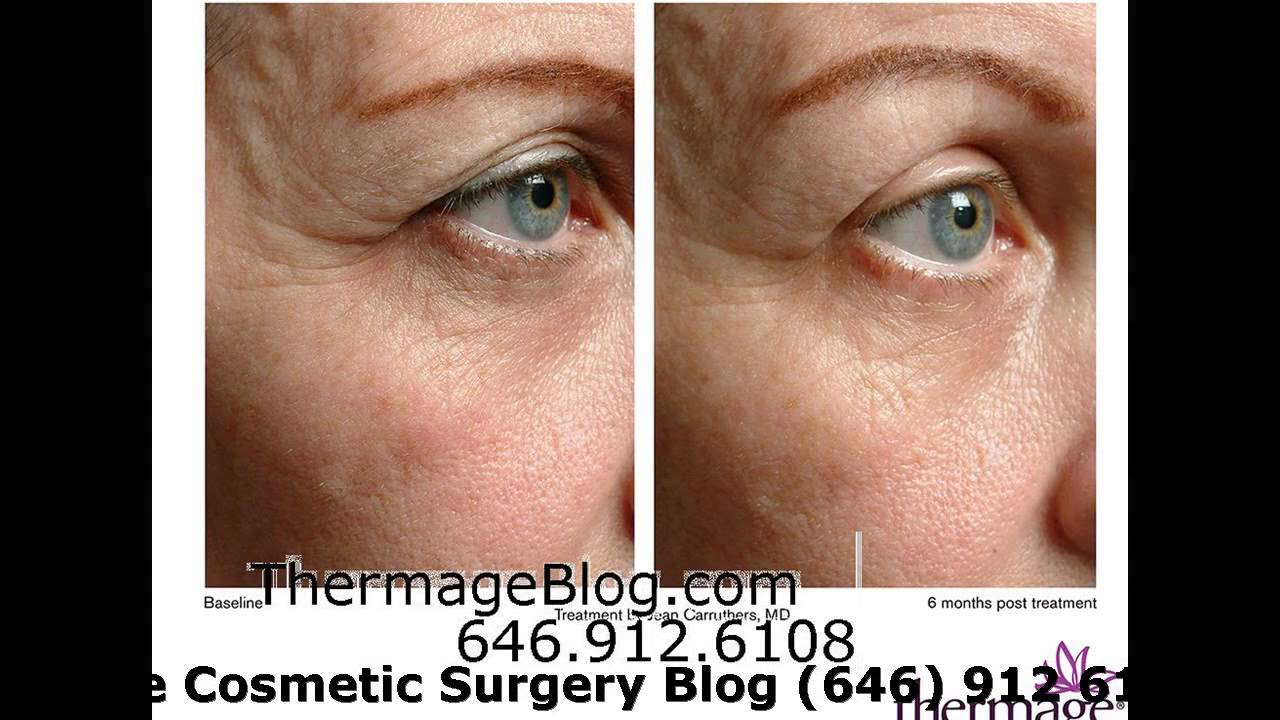 Botox For Under Eye Wrinkles Non Invasive Doovi
