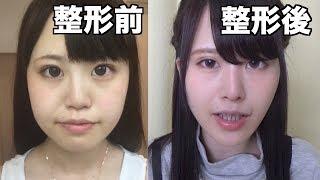 【整形】顔の脂肪吸引Before&After【手術直後の写真あり】