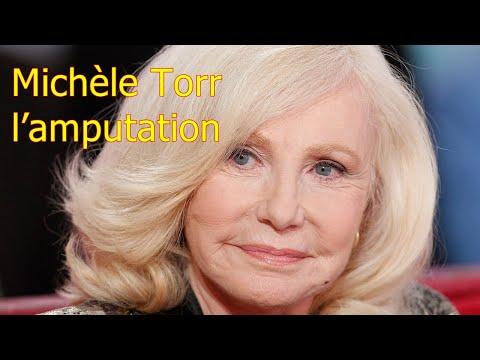 Michèle Torr, « l'amputation »