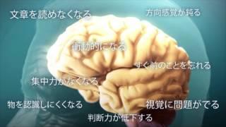 アルツハイマー病を理解する (Understanding Alzheimer's Disease (AD))