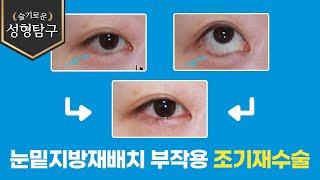 눈밑지방재배치 부작용 조기재수술