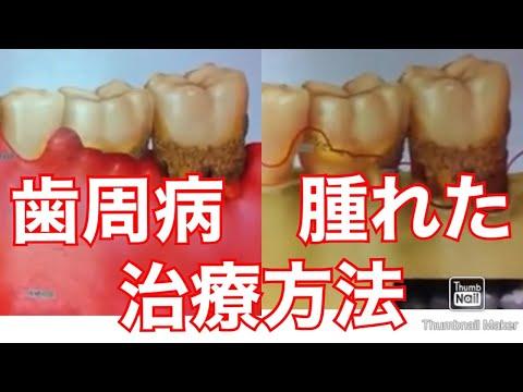歯周病 治療方法 はぐき腫れた膿噛めない痛いあ 歯が浮く 揺れる 説明動画その1大宮 鈴木歯科医院 歯医者デンタル歯科クリニック