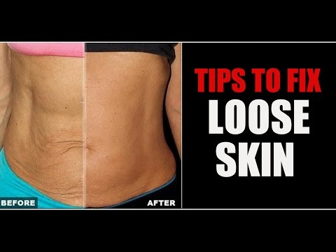 how-to-tighten-up-loose-skin- -sagging-skin-belly-&-arm-skin- -info-by-guru-mann