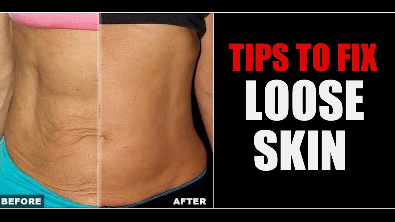 How to remove a sagging belly and tighten the skin 16