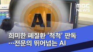 희미한 폐질환 '척척' 판독…전문의 뛰어넘는 Ai  2019.12.12/뉴스데스크/mbc