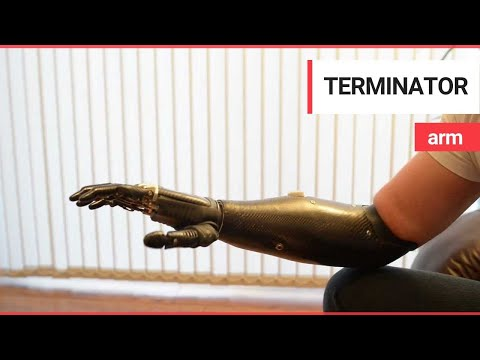 'Terminator' arm is world's most advanced prosthetic limb