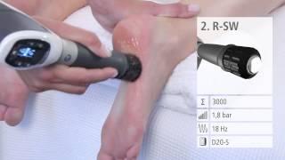 Лечение пяточной шпоры (плантарного фасциита) ударно-волновой терапией(Лечение пяточной шпоры (плантарного фасциита) ударно-волновой терапией в клинике Аватаж. На видео продемон..., 2014-12-04T20:01:24.000Z)
